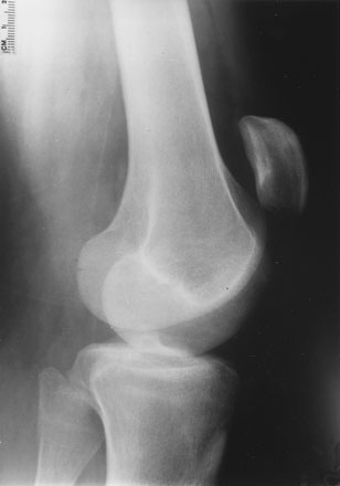 patellar tendon rupture1.jpg