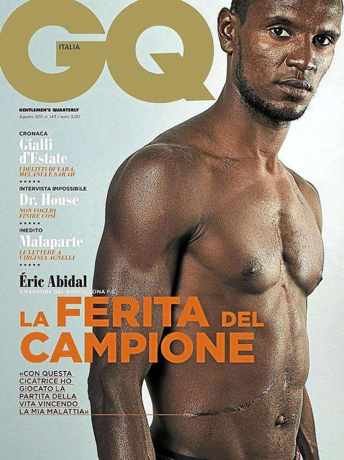 eric abidal shows his scar.jpg