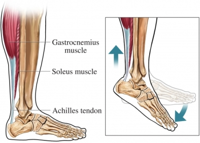 achilles_tendon.jpg